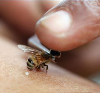 Пчелотерапия